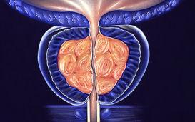 Причины возникновения, симптомы и лечение острого простатита