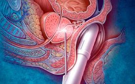 Как делают биопсию предстательной железы, подготовка и расшифровка