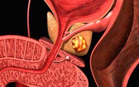 Что такое калькулезный простатит, симптомы и методы лечения