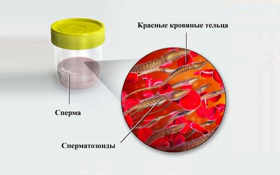 Гемоспермия