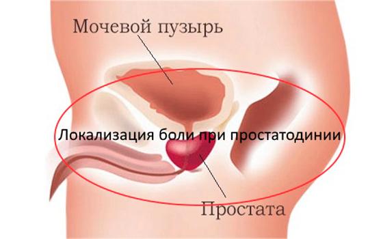 Синдром хронической тазовой боли