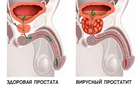 Здоровая простата и вирусный простатит