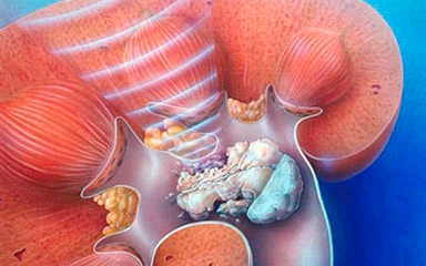 Камни в простате: симптомы и лечение калькулезного простатита — Ваш Доктор