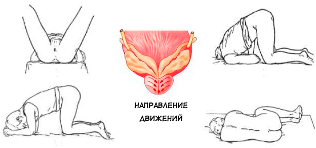 Схема движений, позы и техника проведения массажа простаты