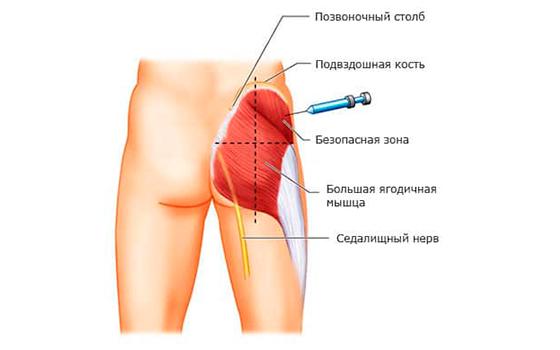 Правильное место для проведения инъекции (укола